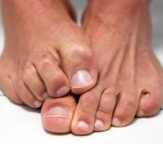 Как вылечить грибок ногтей в домашних условиях