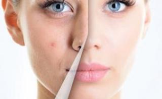 Частые воспалительные явления ведут к появлению шрамов